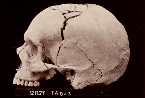 The skull of the unknown soldier who died of a shrapnel wound (Archive.org)